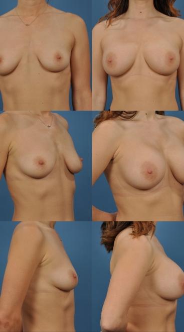 Breast Augmentation with Inferior Mastopexy- Case 43