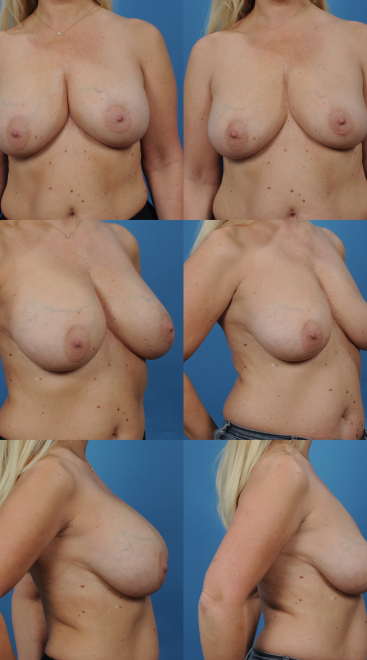 Breast Implant Removal- Case 6