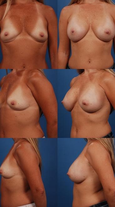 Breast Augmentation – Case 19