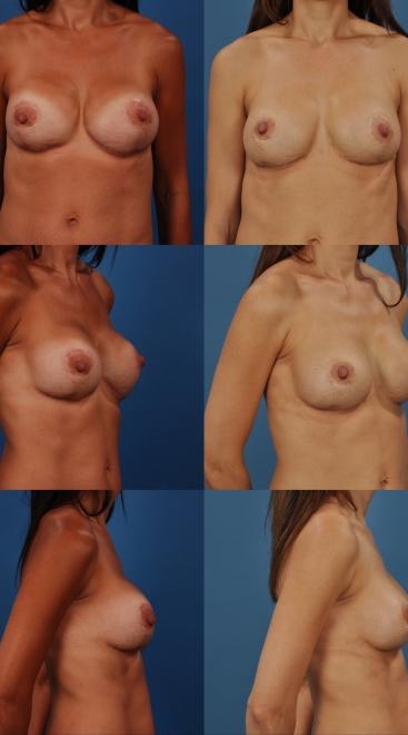 Revision Breast Augmentation Case M