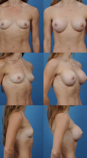 Breast Augmentation- Case 7