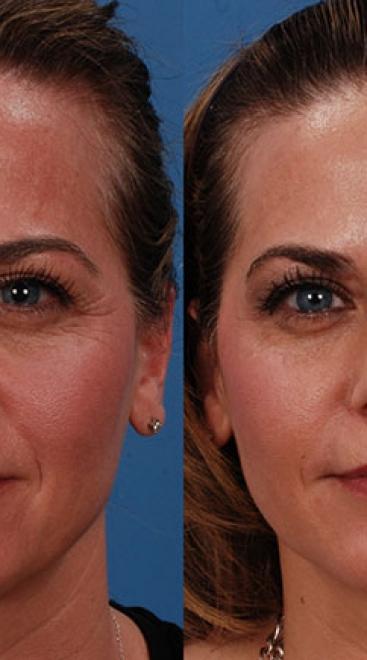 Botox Case D