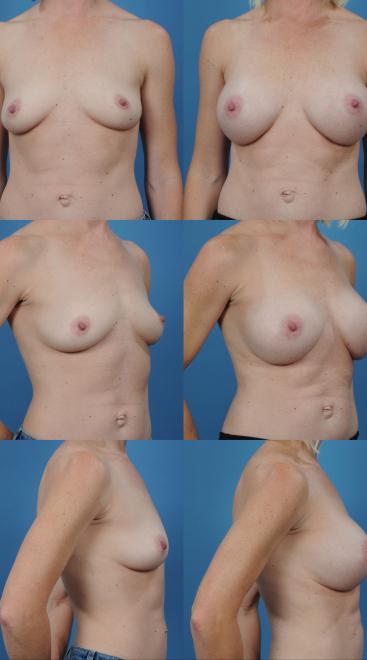 Breast Augmentation- Case 8