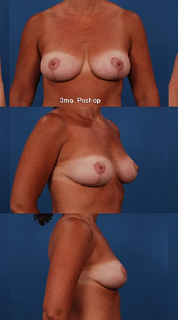 Breast Lift with Placement of Supportive Scaffold- Case B