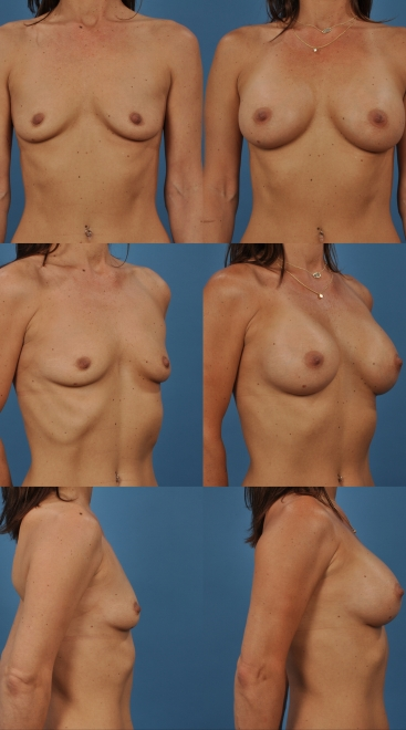 Breast Augmentation- Case 36