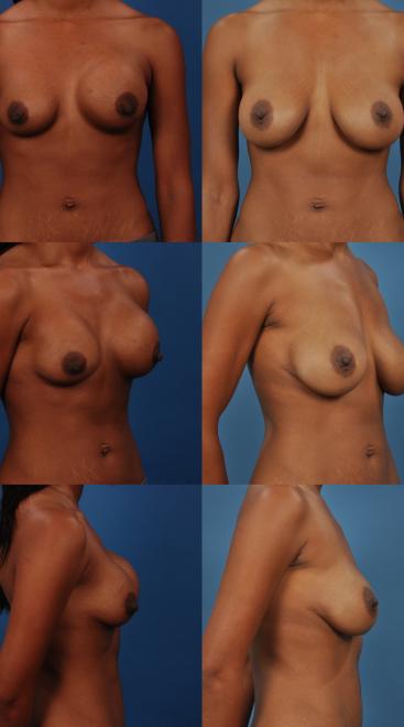 Implant Exchange with Capsulectomy- Case 11