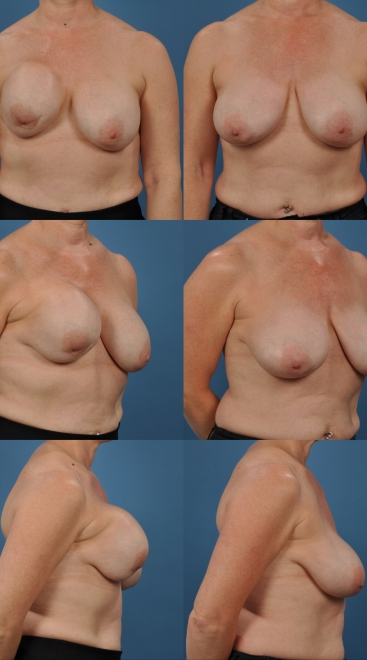 Revision Breast Augmentation with Capsulectomy- Case H