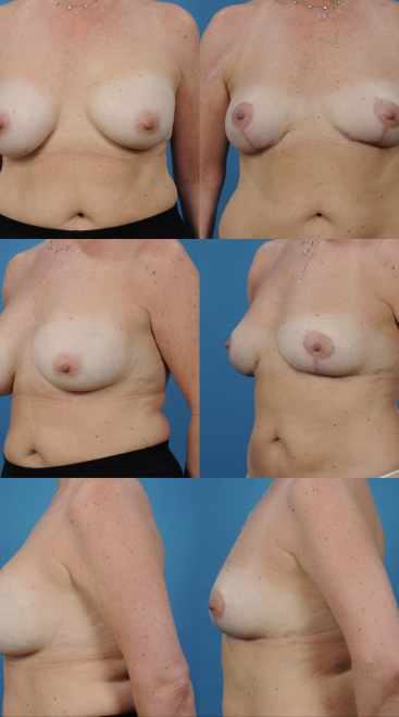 Revision Breast Augmentation- Case J