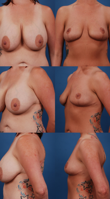 Implant Removal with Breast Lift- Case 10