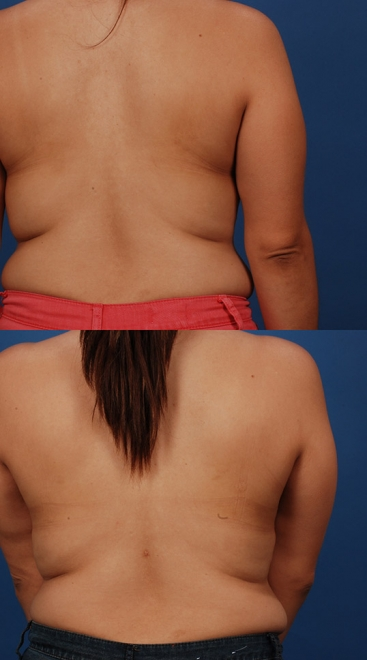 Liposuction Case D