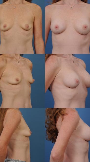 Breast Augmentation- Case 24