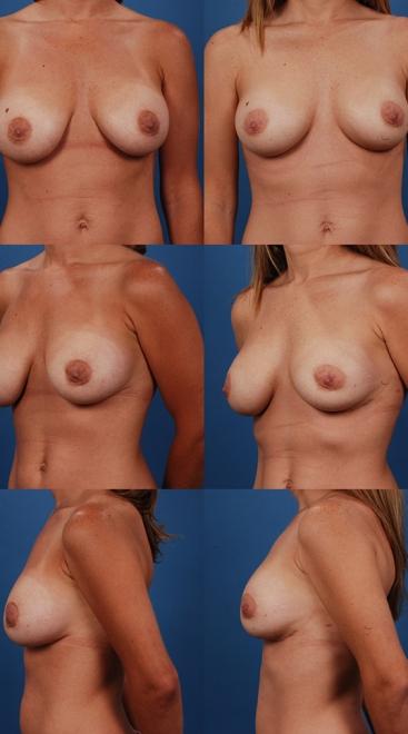 Breast Augmentation Revision- Case F