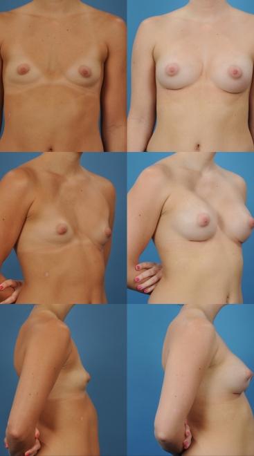 Breast Augmentation- Case 39