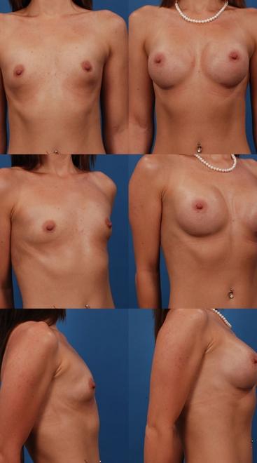 Breast Augmentation – Case 14