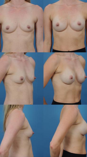 Breast Augmentation- Case 52