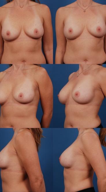 Revision Breast Augmentation- Case D