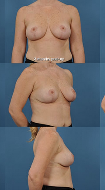 Breast Lift with Placement of Supportive Scaffold- Case E