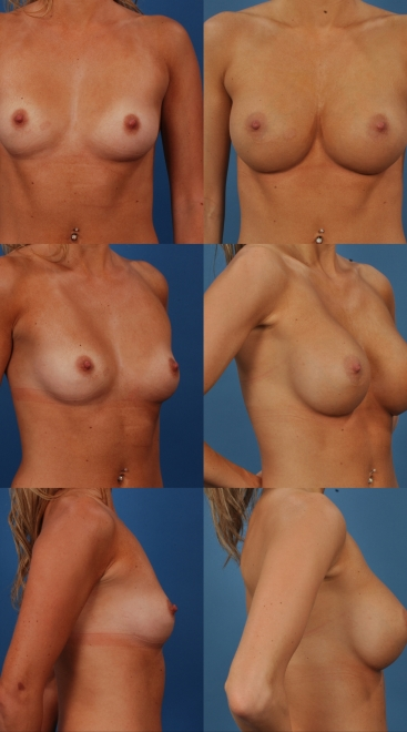 Breast Augmentation- Case 44
