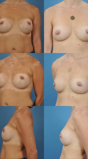 Revision Breast Augmentation- Case Z