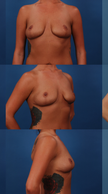 Staged Revision Breast Augmentation- Case A