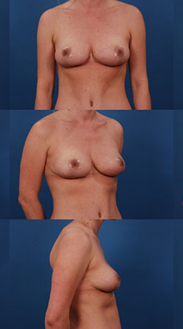 Breast Lift with Placement of Supportive Scaffold- Case A