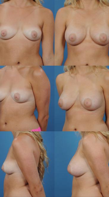 Breast Augmentation- Case 62