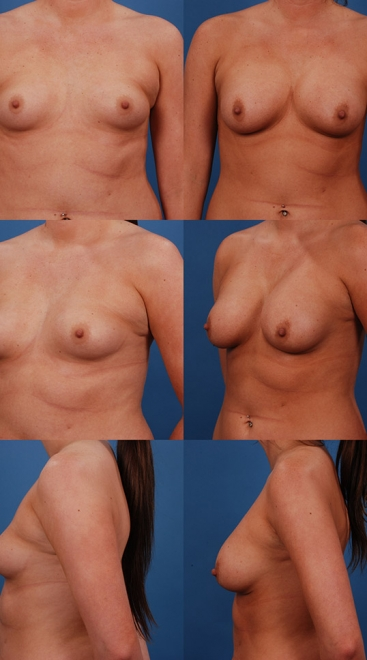 Form Stable Breast Implants Case Q