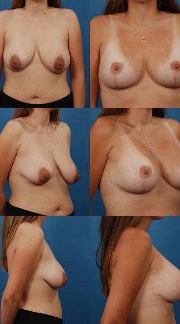 2 Stage Augmentation/Mastopexy Case B