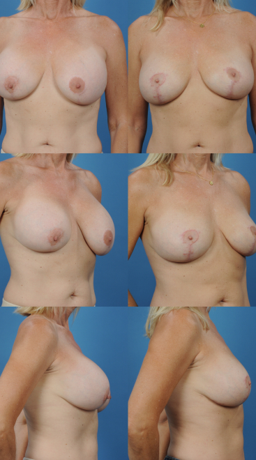 Implant Exchange with Capsulectomy- Case 7