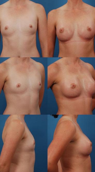 Breast Augmentation – Case 16