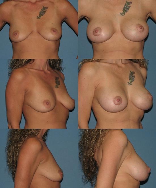 Nipple Repositioning Case D