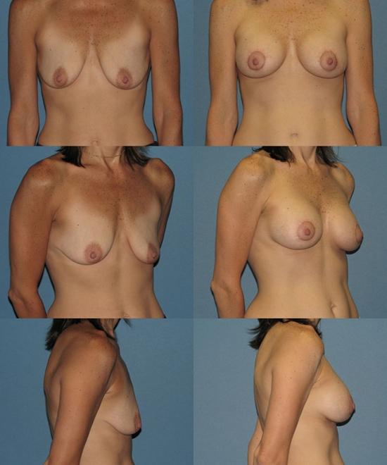 Nipple Repositioning Case B