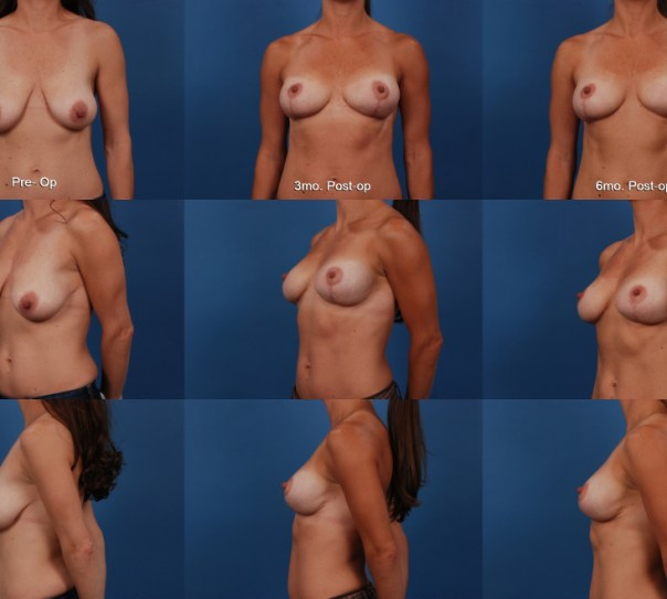 Breast Lift with Supportive Scaffold