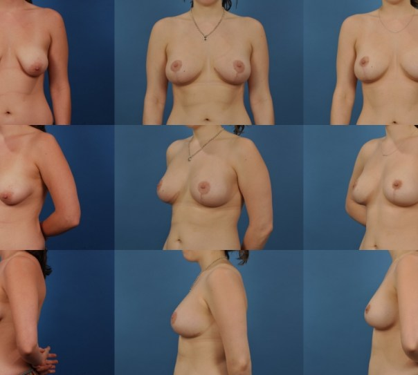 Augmentation with Breast Lift- Case 11