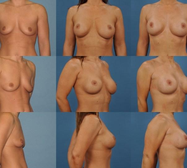 Breast Augmentation Revision- Case O