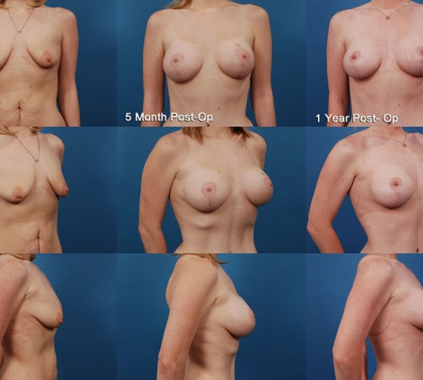 Augmentation with Breast Lift- Case 9