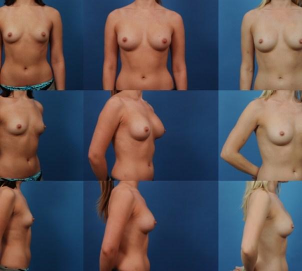 Breast Augmentation Case W