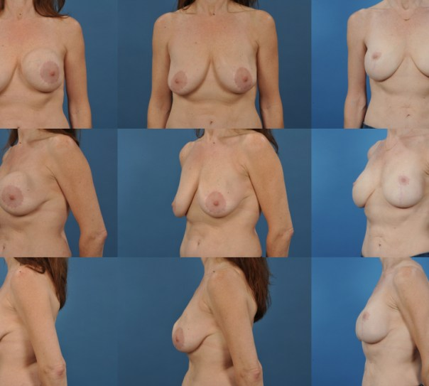 Implant Exchange with Capsulectomy with Second Stage Breast Lift- Case 13