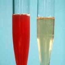 Uzorak mokraće. Krv u urinu. sediment