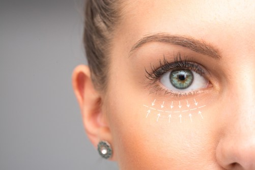 What is a Brow Lift? Dr Frati Cosmetic Surgery