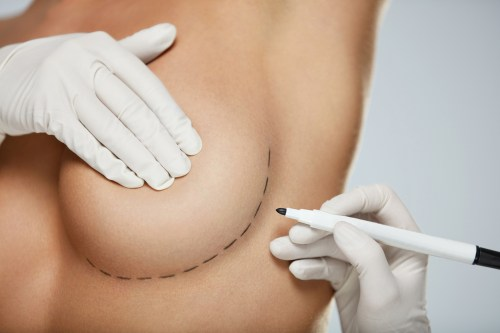 What to Expect After a Breast Augmentation Dr Frati Cosmetic Surgery