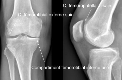 Radiographie : usure isolée d'un compartiment