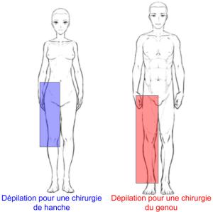 Zone dépilatoire en chirurgie de hanche et de genou