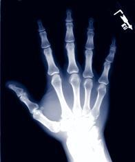 verstauchung der hand