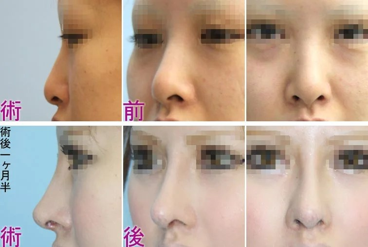 鼻中隔延長 | 美容外科ヤスミクリニック