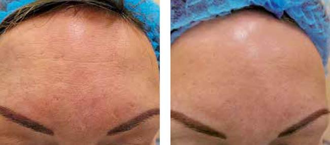 Laser SMA : traitements des imperfections de la peau