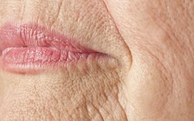 Código de Barras: como tratar as rugas ao redor dos lábios