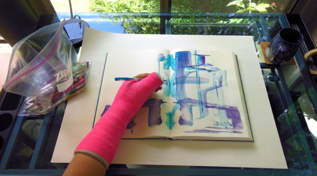 Arm in cast, working in journal.