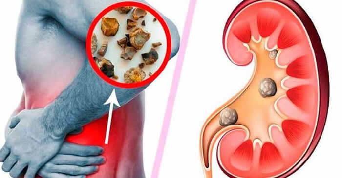 cómo saber si tengo piedras en los riñones