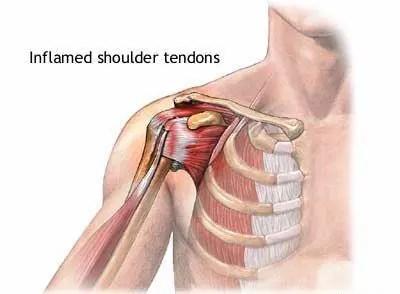 Shoulder Tendonitis Diagram - El Paso Chiropractor